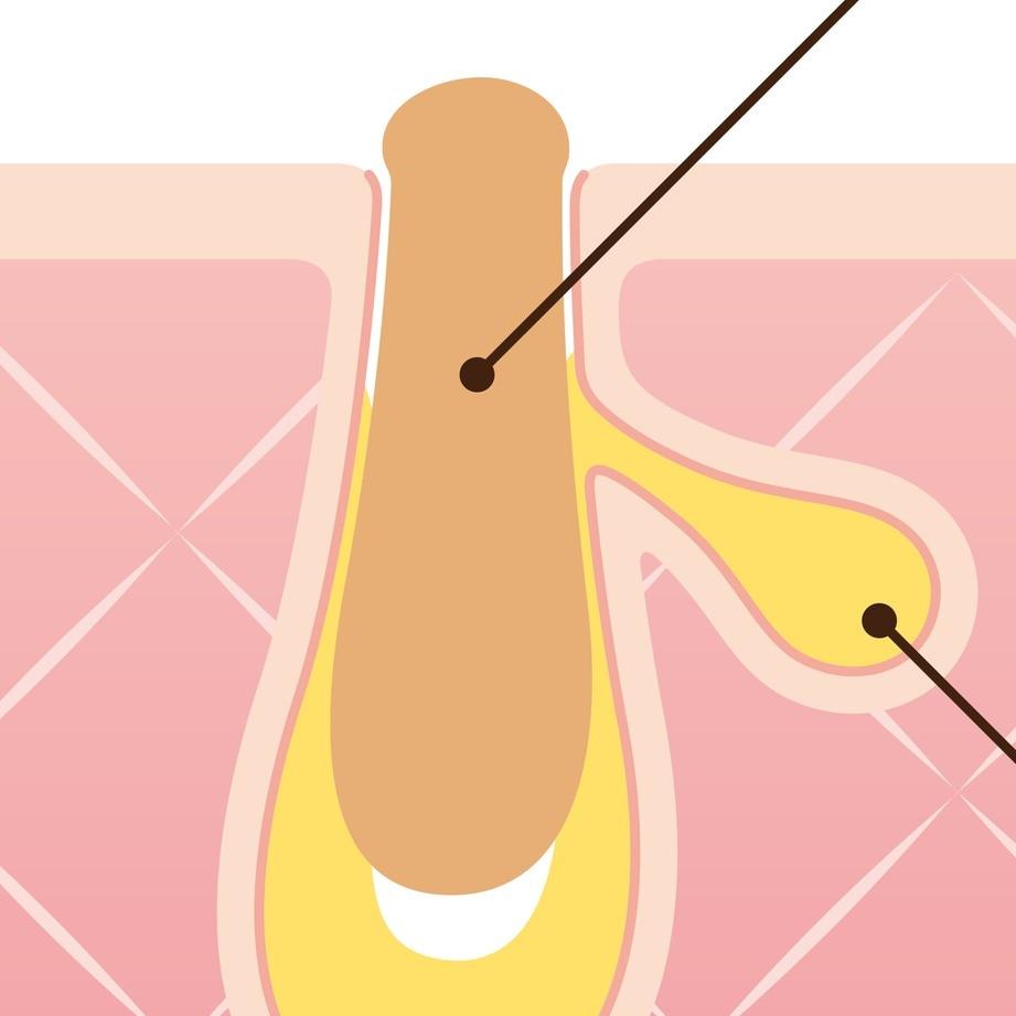 黒ずみ毛穴の原因と対策